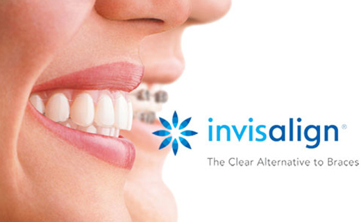 Invisalign, Winnipeg Orthodontist